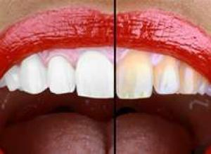 clareamento a laser dental