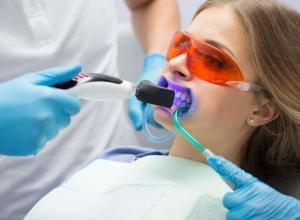 clareamento dental a laser